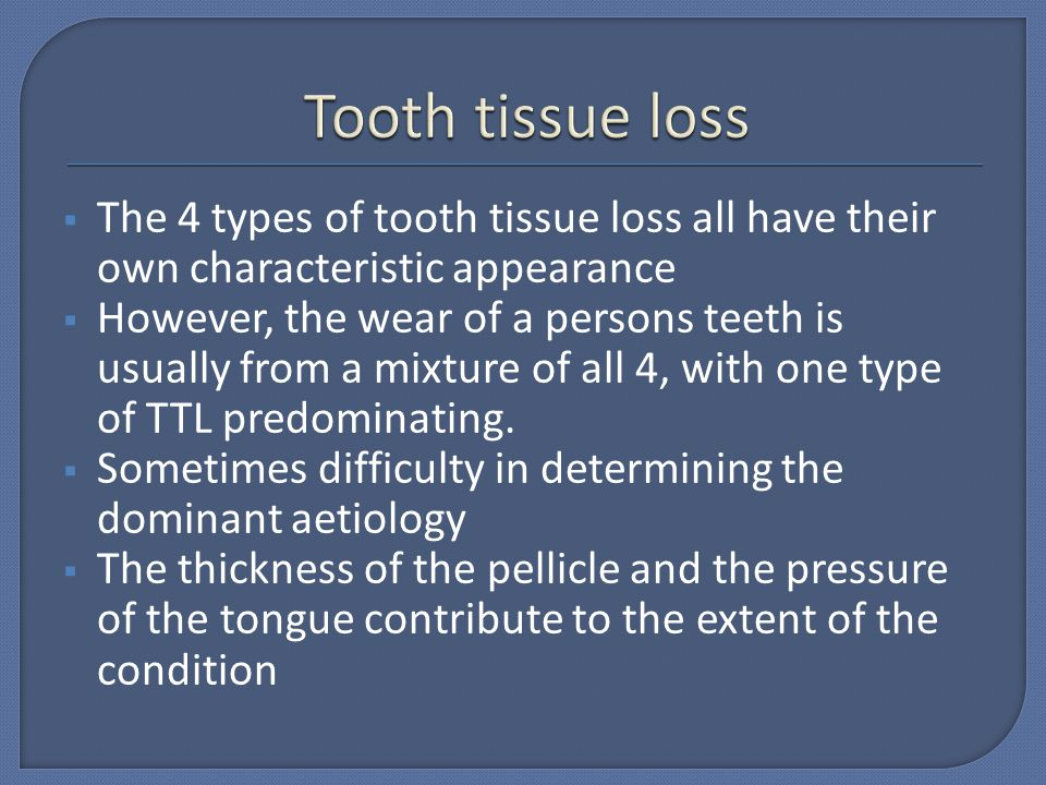 Tooth tissue loss The 4 types of tooth tissue loss all have their own characteristic appearance.