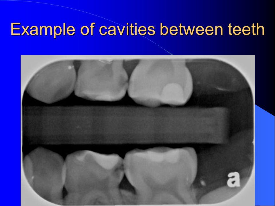 Example of cavities between teeth