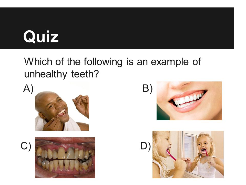 Quiz Which of the following is an example of unhealthy teeth A) B)