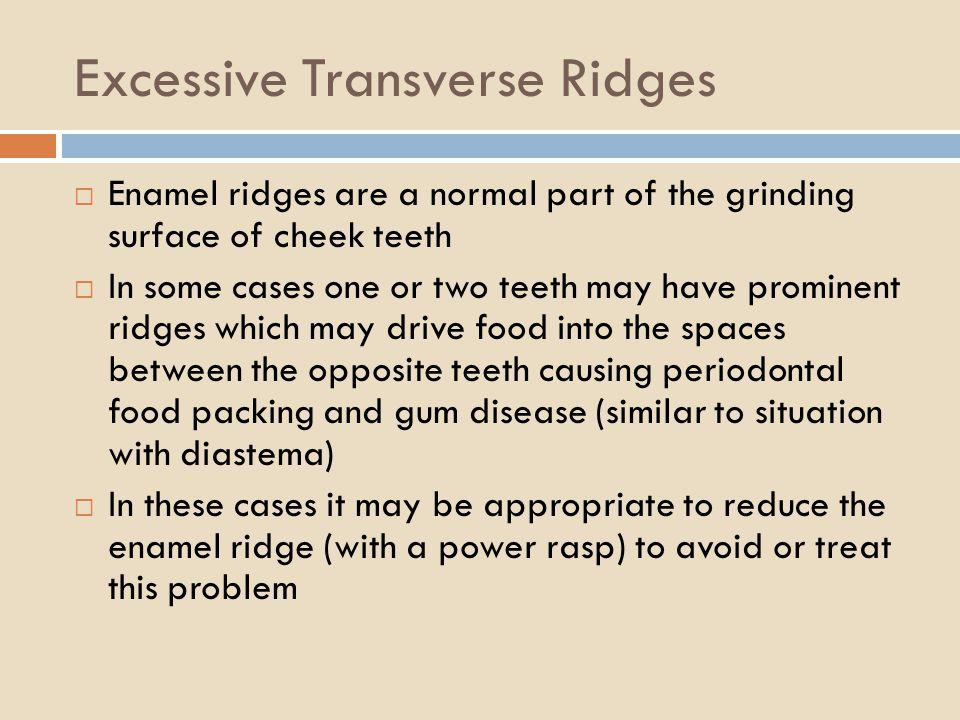 Excessive Transverse Ridges