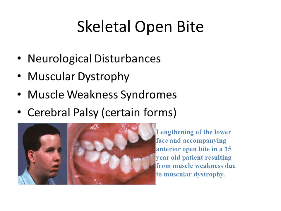 Skeletal Open Bite Neurological Disturbances Muscular Dystrophy