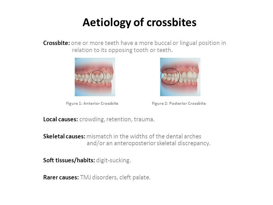 Aetiology of crossbites