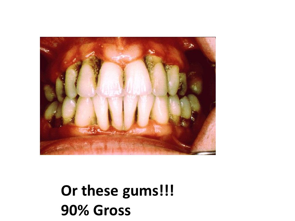 Or these gums!!! 90% Gross