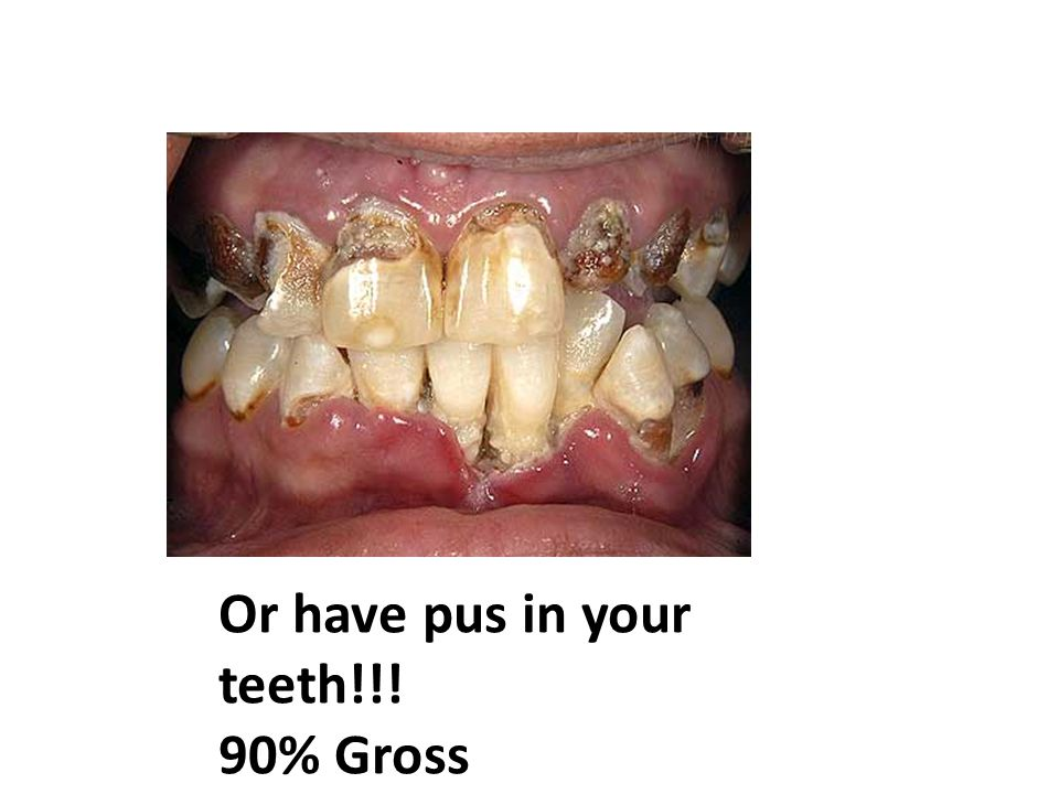 Or have pus in your teeth!!! 90% Gross