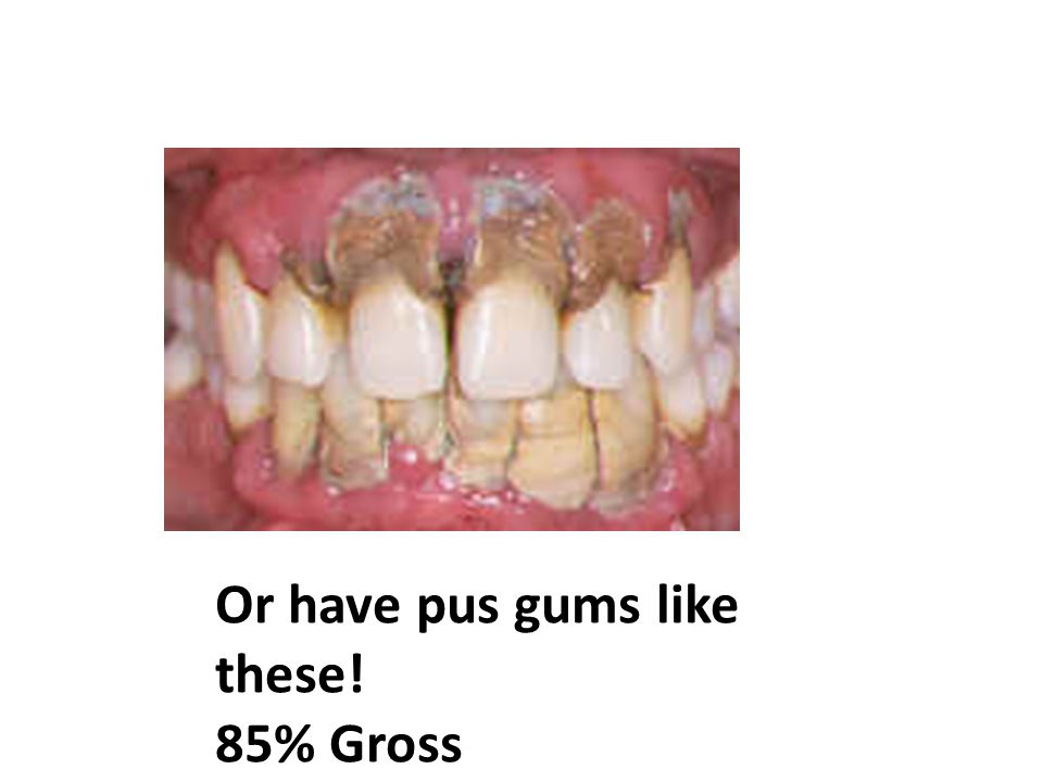 Or have pus gums like these! 85% Gross