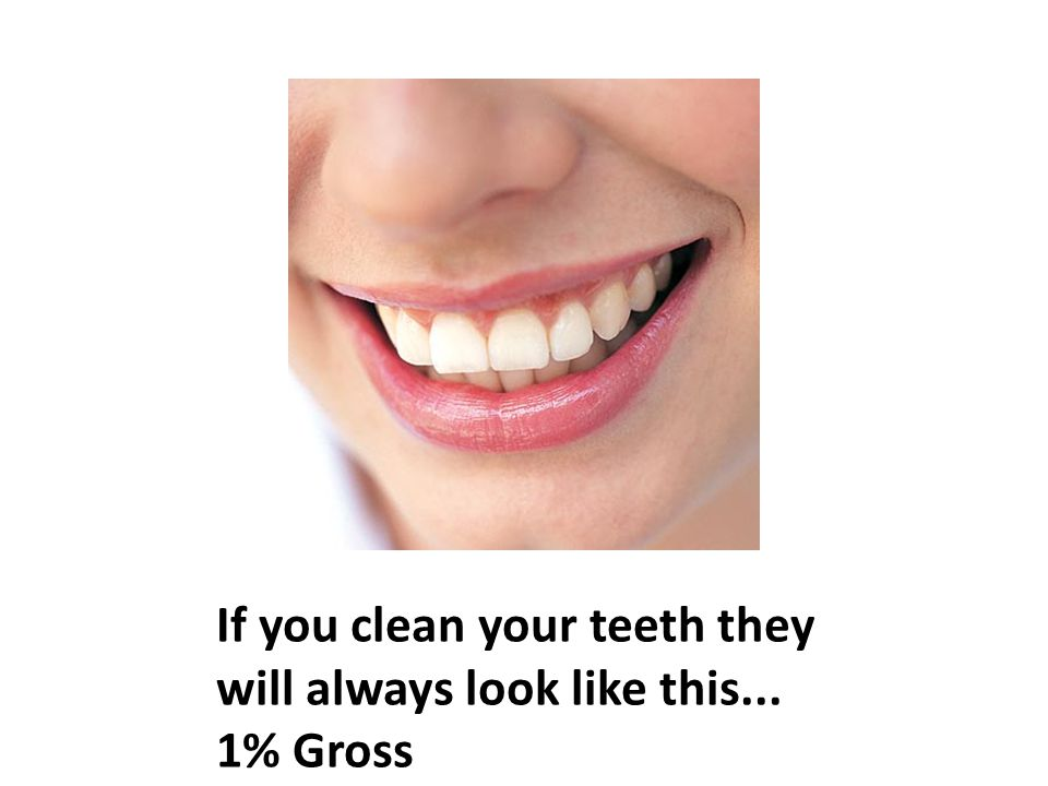 If you clean your teeth they will always look like this... 1% Gross