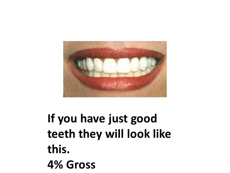 If you have just good teeth they will look like this. 4% Gross