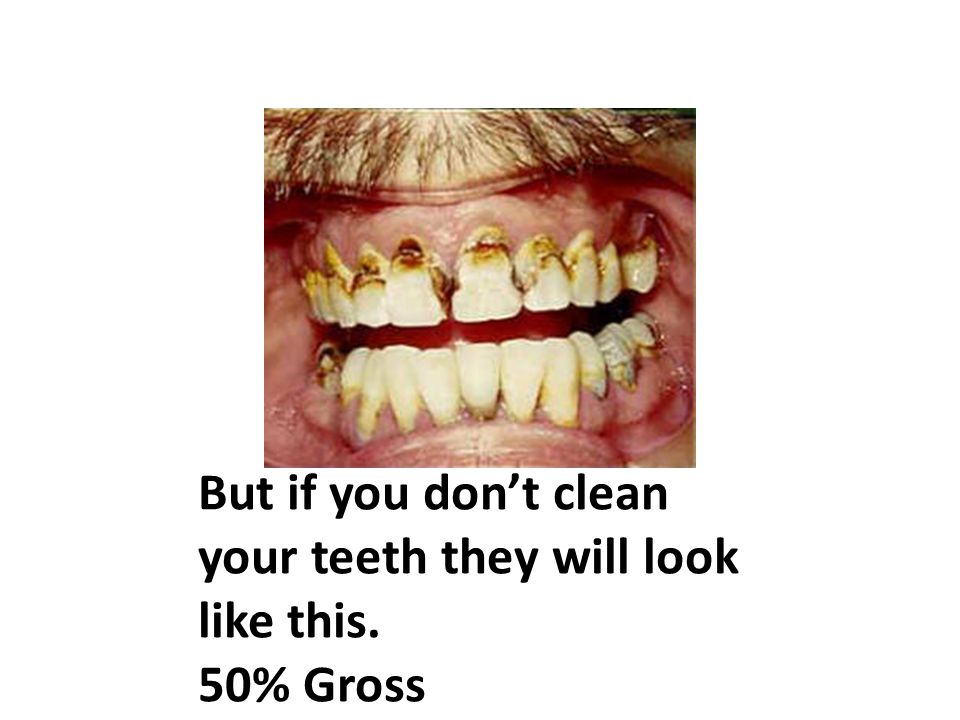But if you don't clean your teeth they will look like this. 50% Gross