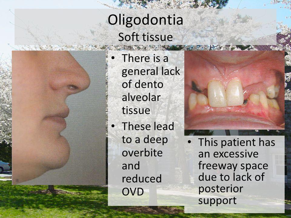 Oligodontia Soft tissue