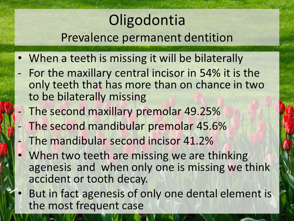 Oligodontia Prevalence permanent dentition