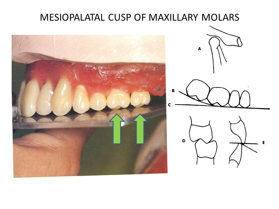 MESIOPALATAL CUSP OF MAXILLARY MOLARS