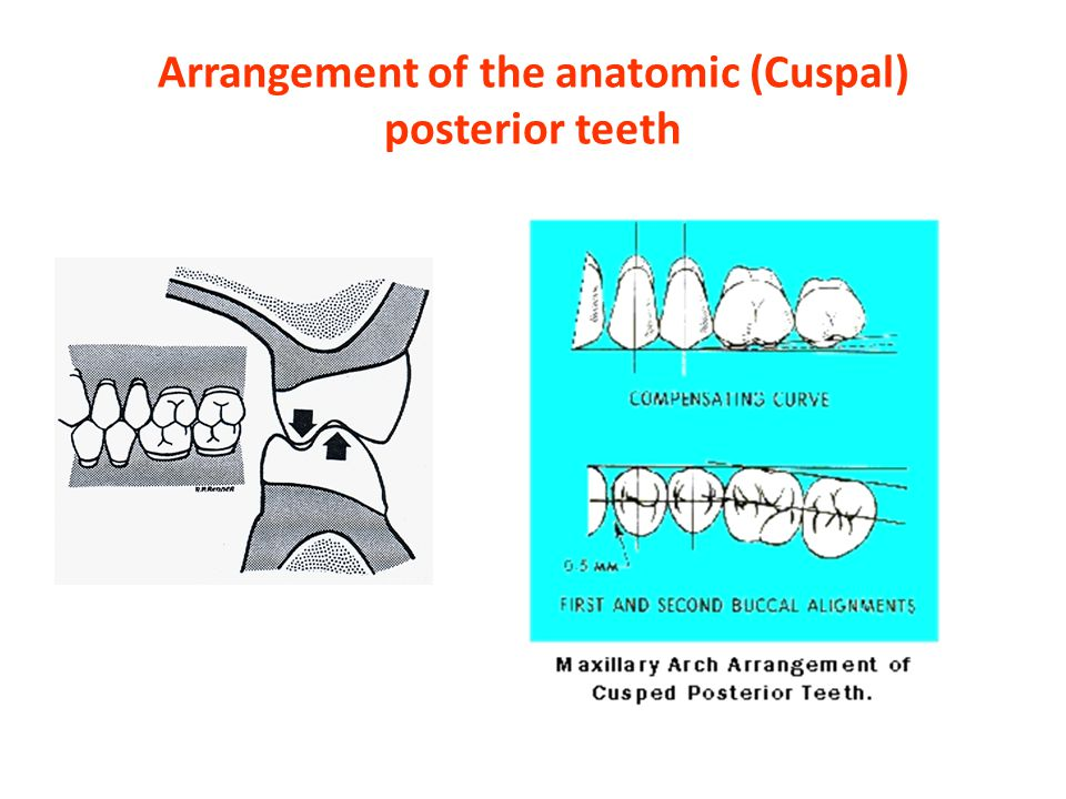 Arrangement of the anatomic (Cuspal) posterior teeth