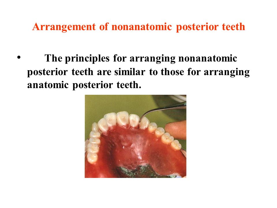 Arrangement of nonanatomic posterior teeth