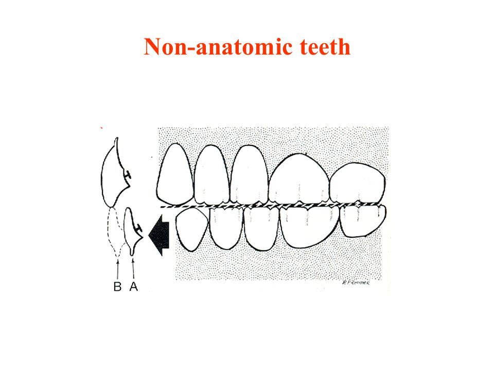 Non-anatomic teeth