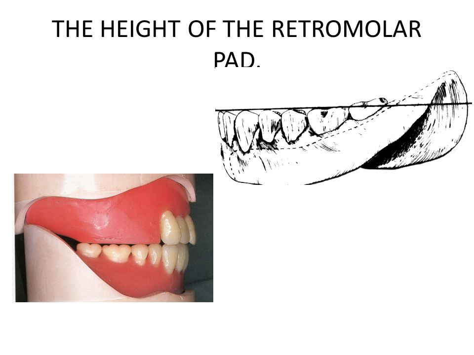 THE HEIGHT OF THE RETROMOLAR PAD.