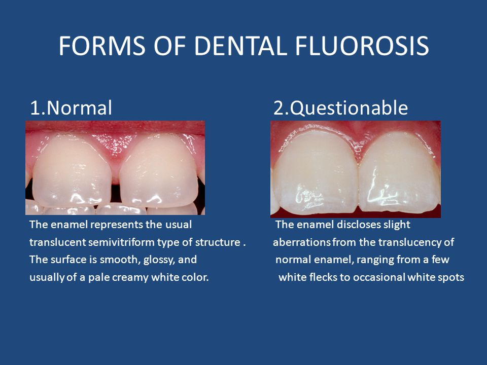 FORMS OF DENTAL FLUOROSIS