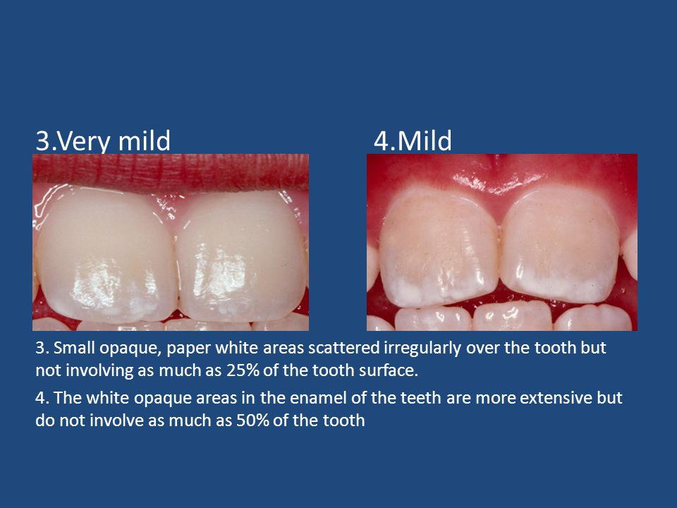 3.Very mild 4.Mild 3. Small opaque, paper white areas scattered irregularly over the tooth but not involving as much as 25% of the tooth surface.