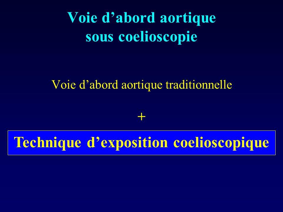 Voie d'abord aortique sous coelioscopie