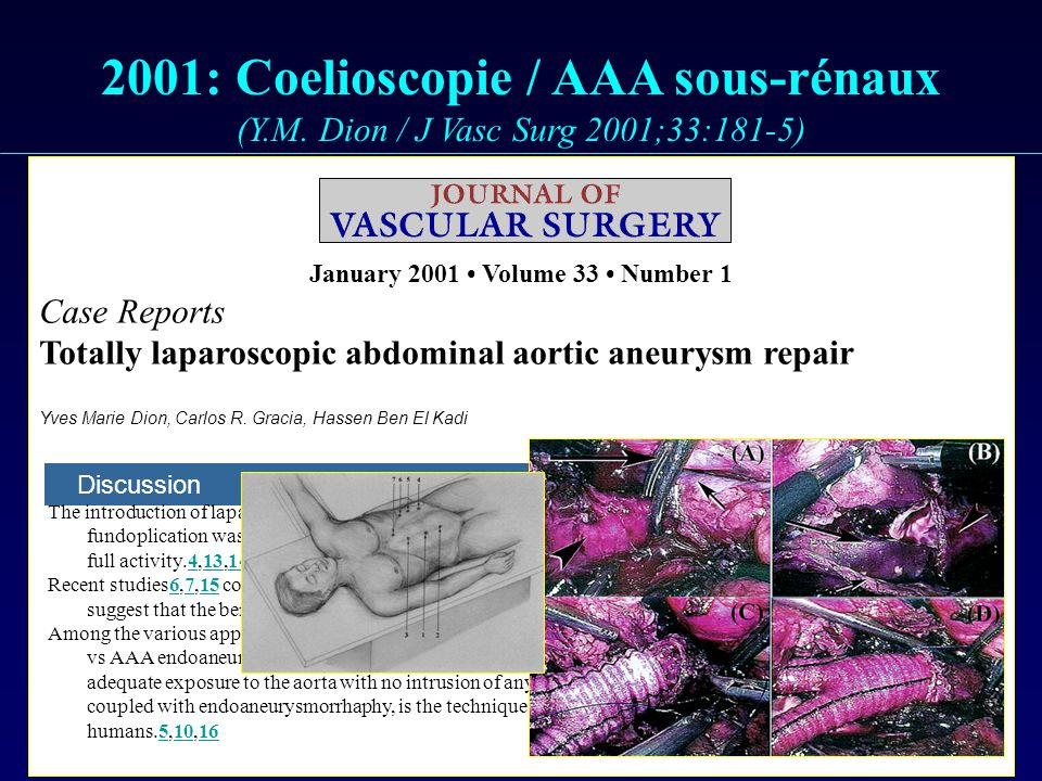 2001: Coelioscopie / AAA sous-rénaux (Y. M