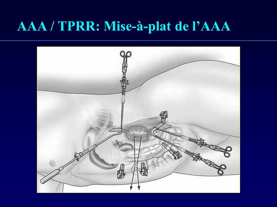 AAA / TPRR: Mise-à-plat de l'AAA