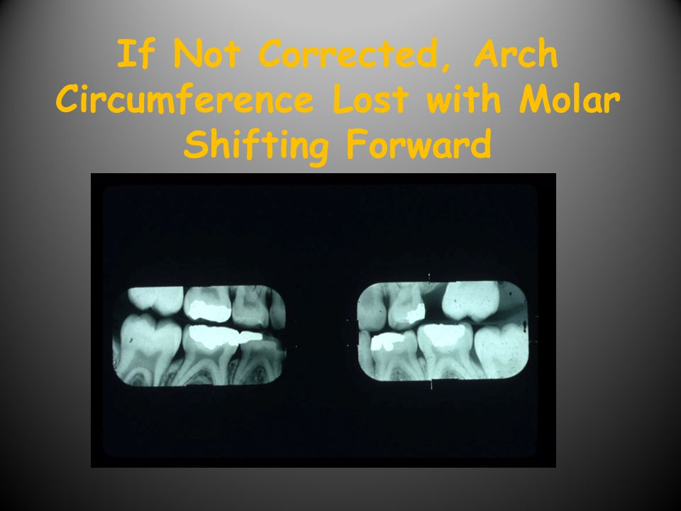 If Not Corrected, Arch Circumference Lost with Molar Shifting Forward