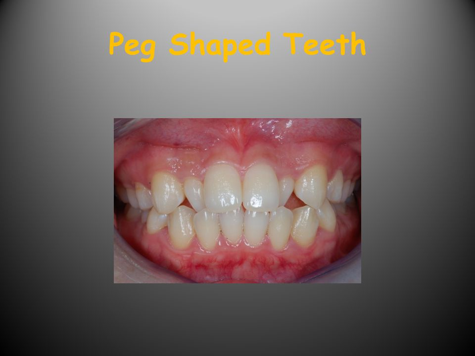 Peg Shaped Teeth