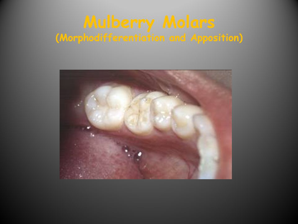 Mulberry Molars (Morphodifferentiation and Apposition)
