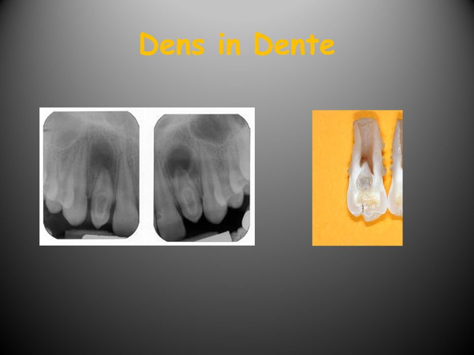 Dens in Dente