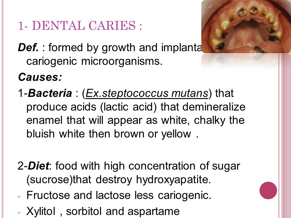 1- DENTAL CARIES : Def. : formed by growth and implantation of cariogenic microorganisms. Causes: