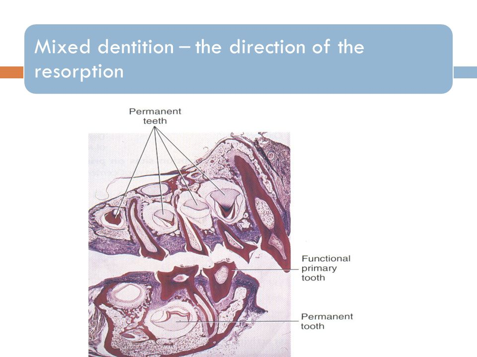 Mixed dentition – the direction of the resorption