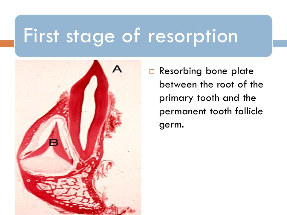 First stage of resorption