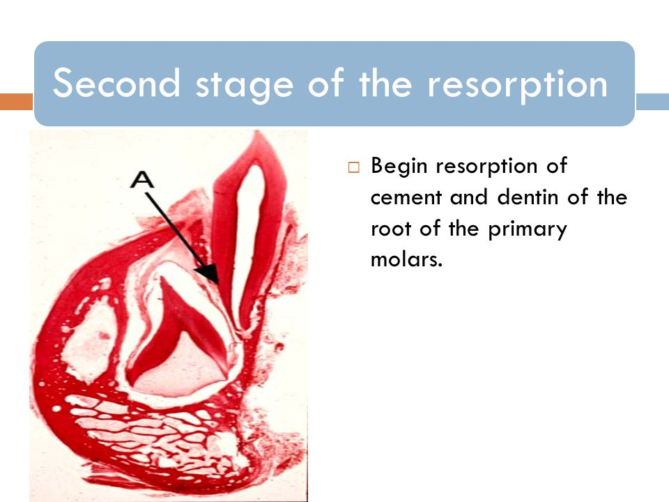 Second stage of the resorption
