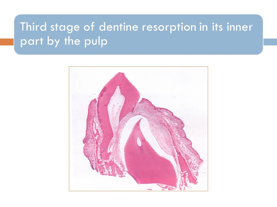 Third stage of dentine resorption in its inner part by the pulp