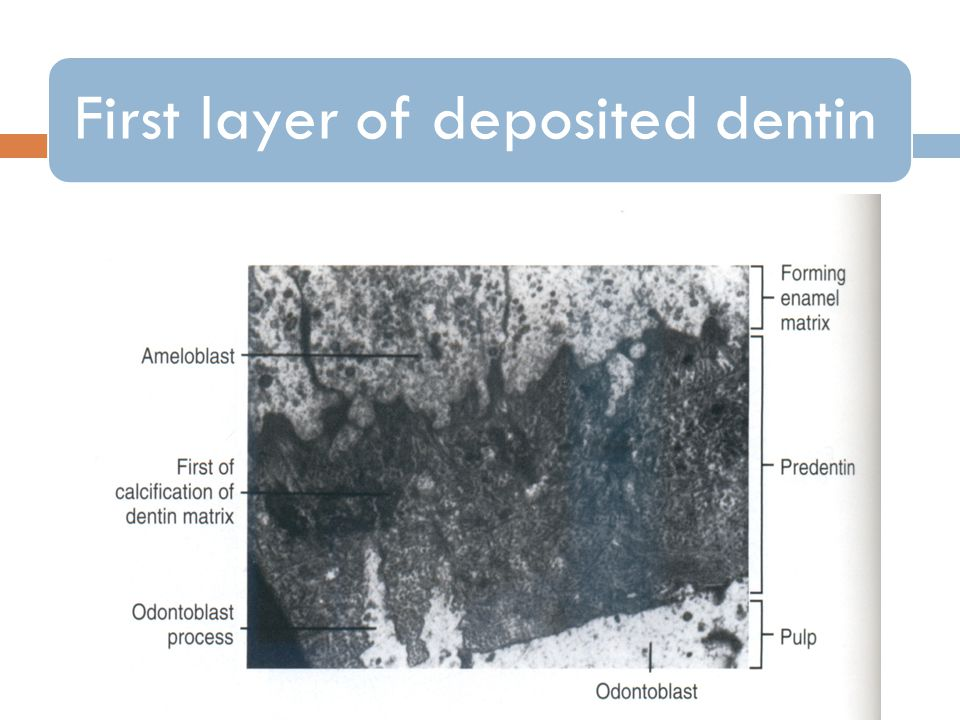 First layer of deposited dentin