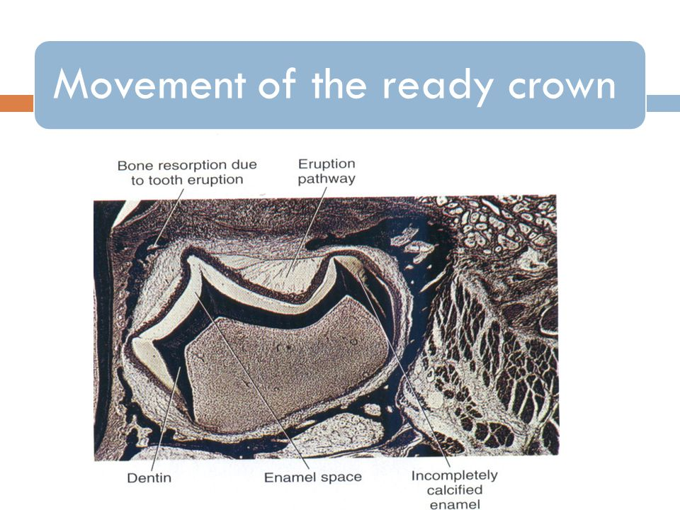 Movement of the ready crown