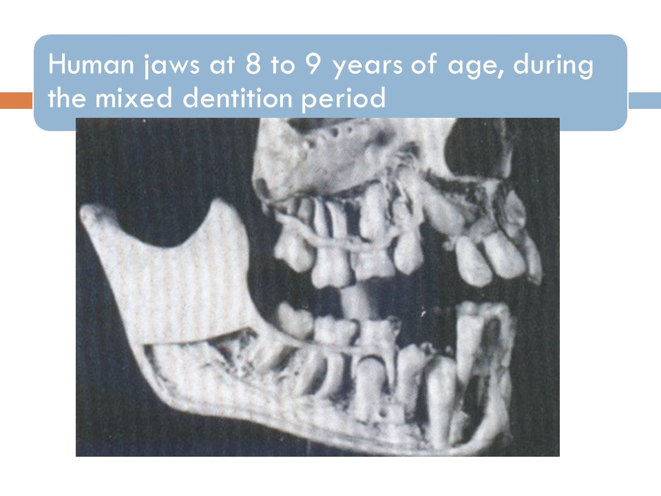 Human jaws at 8 to 9 years of age, during the mixed dentition period