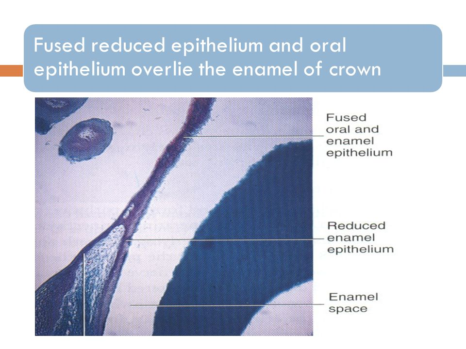 Fused reduced epithelium and oral epithelium overlie the enamel of crown