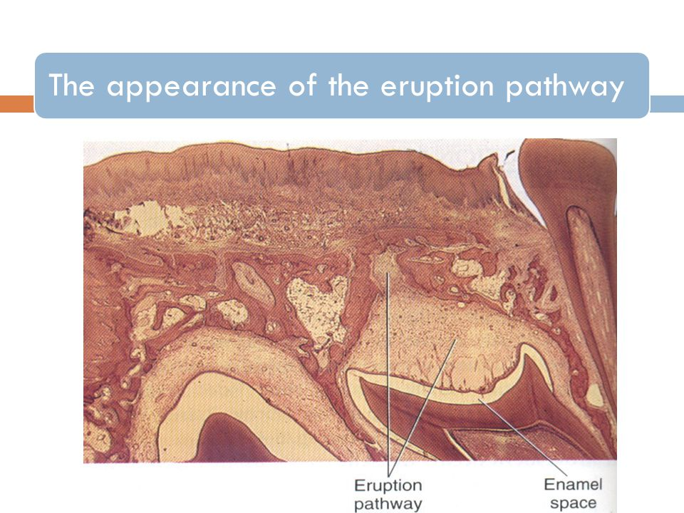 The appearance of the eruption pathway