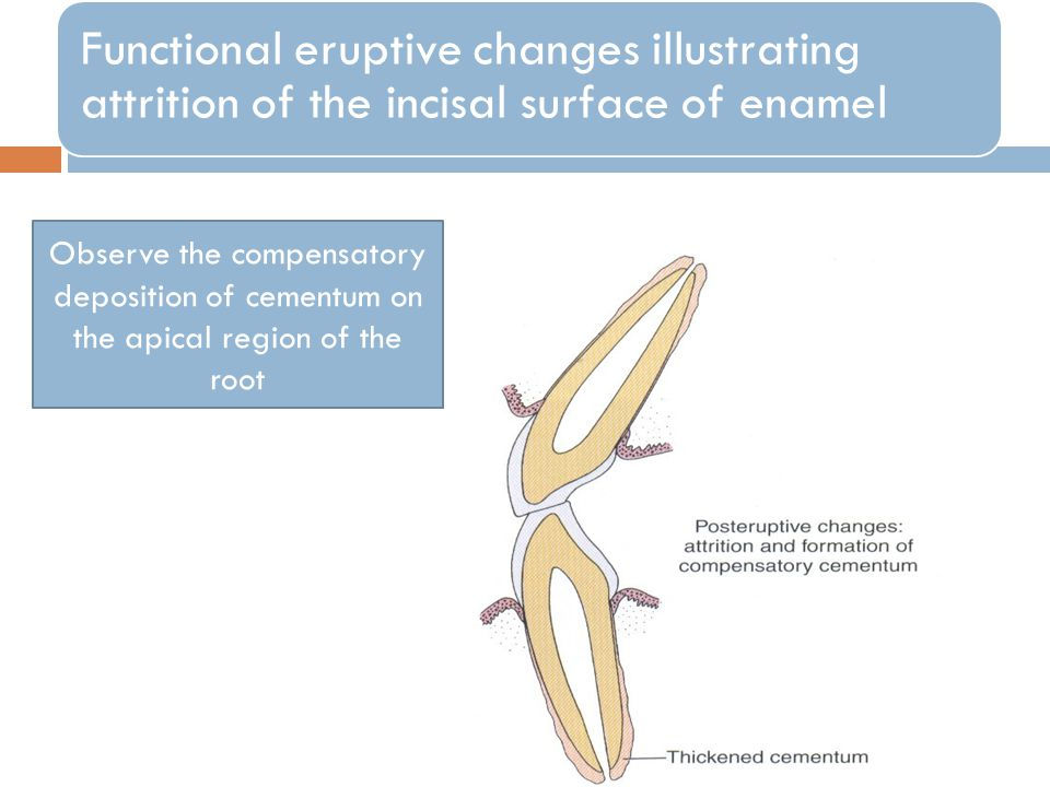 Functional eruptive changes illustrating attrition of the incisal surface of enamel