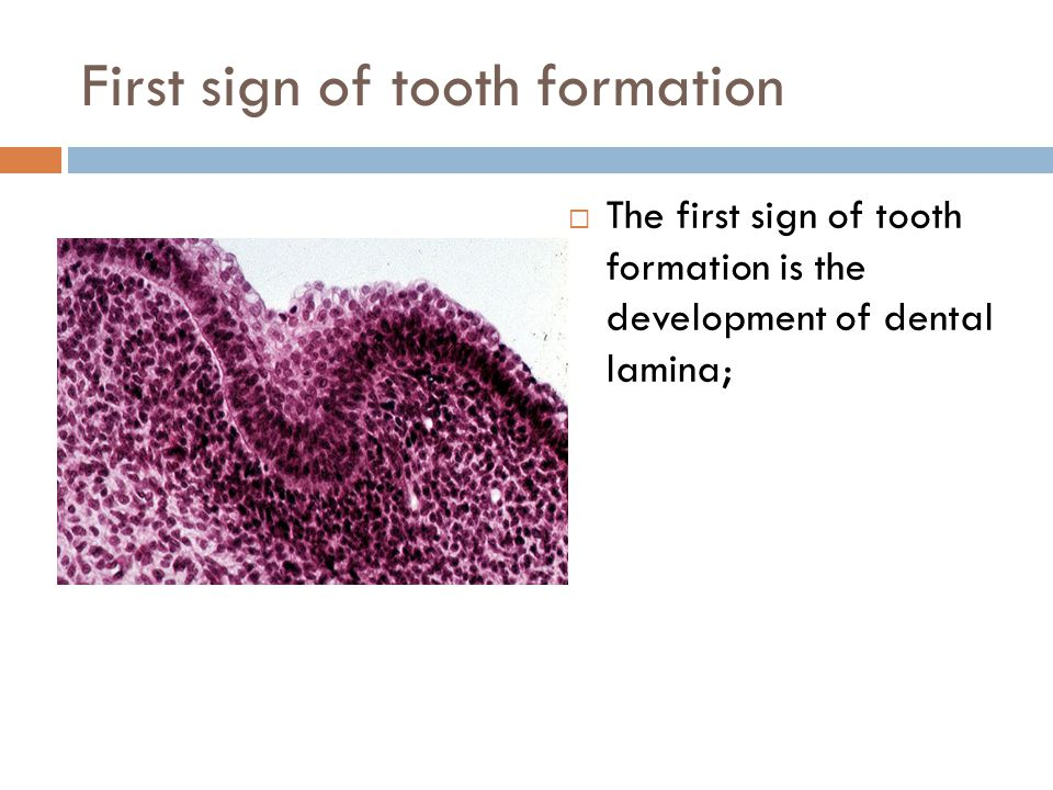First sign of tooth formation