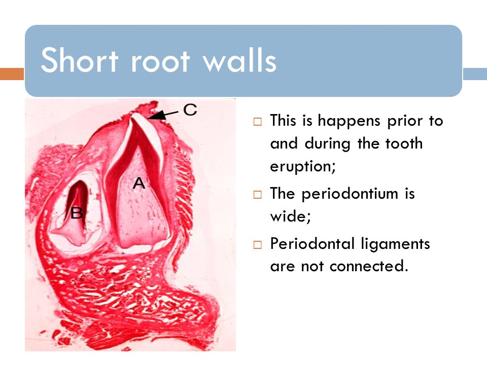 This is happens prior to and during the tooth eruption;