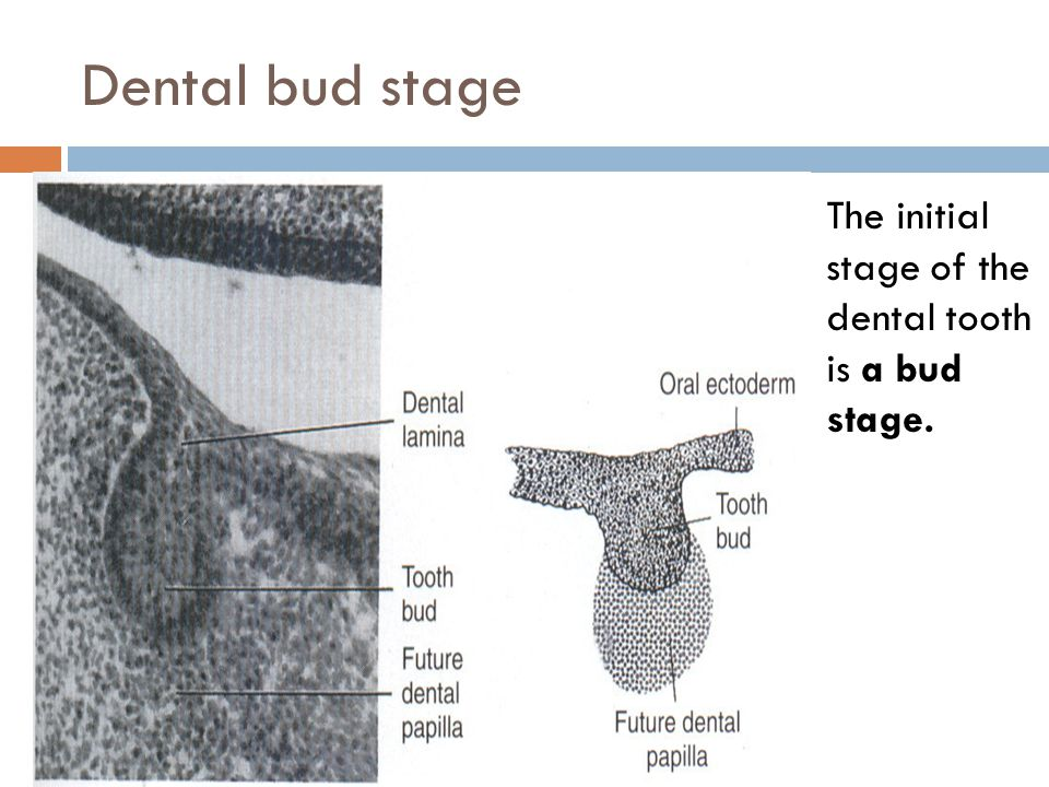 Dental bud stage The initial stage of the dental tooth is a bud stage.