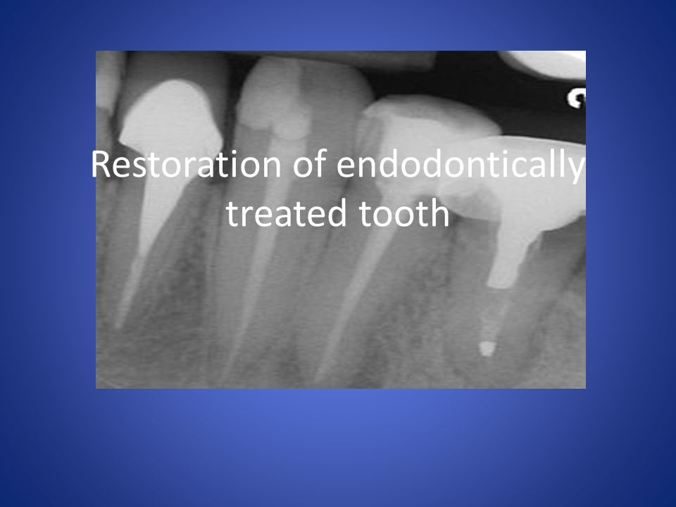 Restoration of endodontically treated tooth