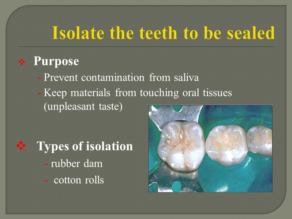 Isolate the teeth to be sealed