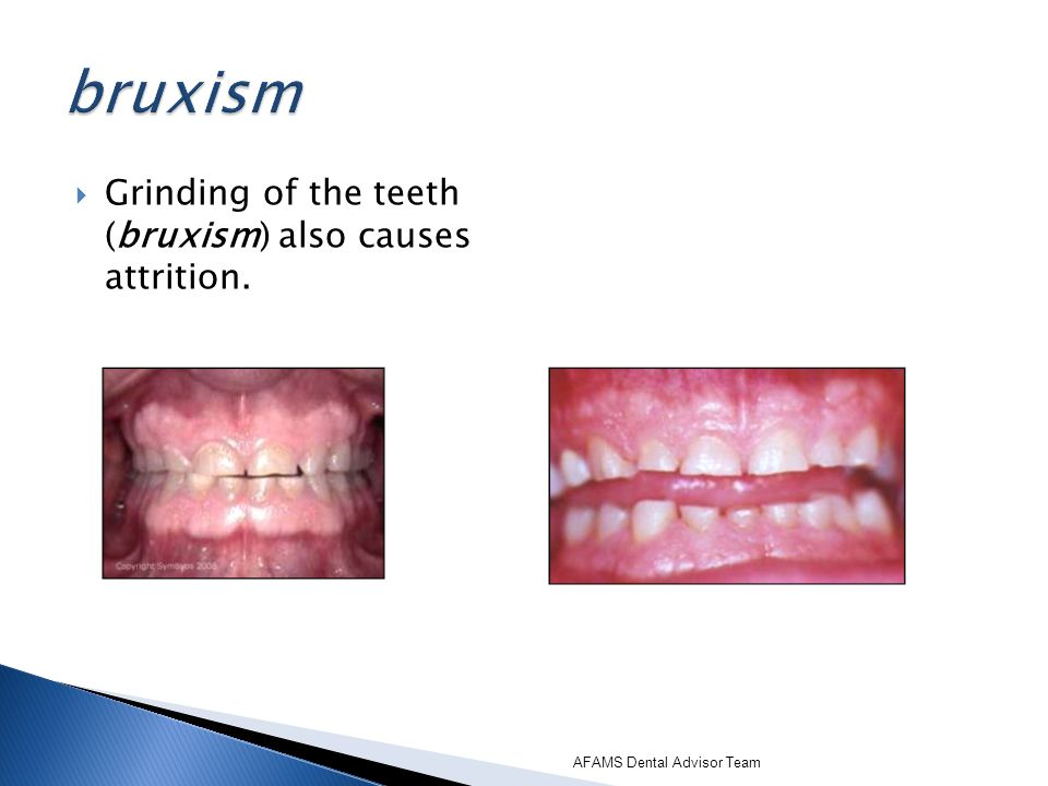 bruxism Grinding of the teeth (bruxism) also causes attrition.