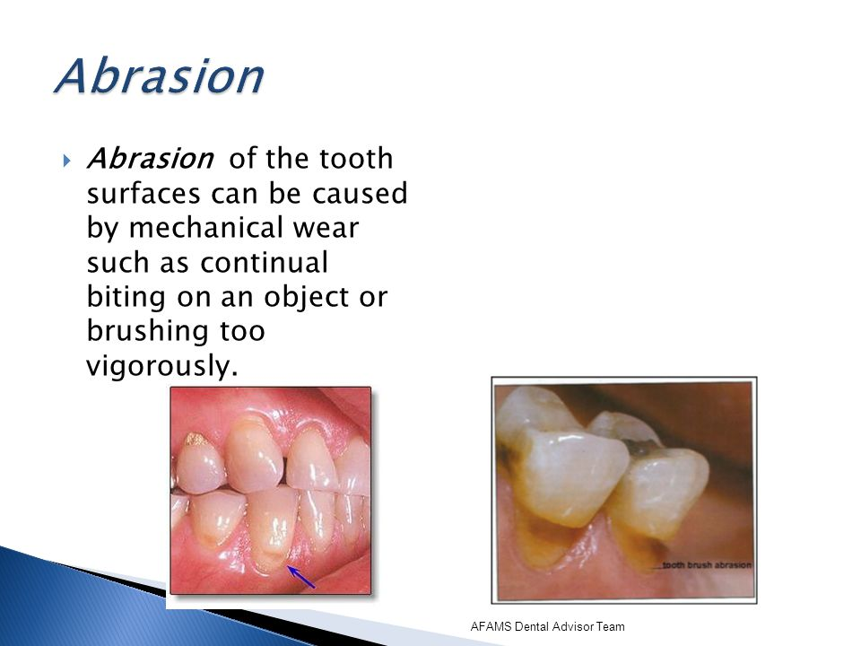 Abrasion Abrasion of the tooth surfaces can be caused by mechanical wear such as continual biting on an object or brushing too vigorously.