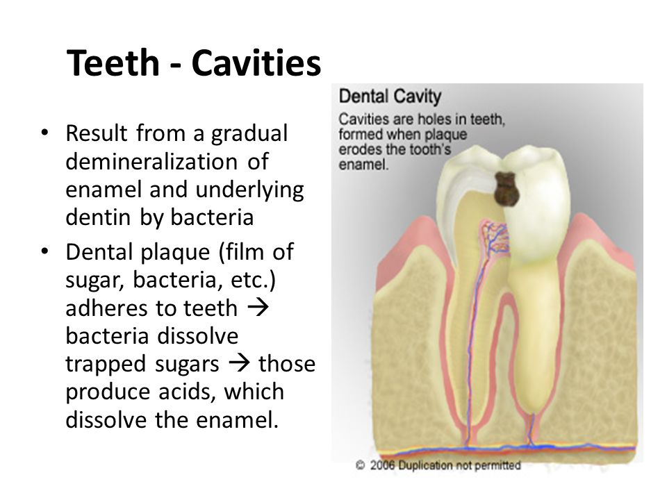 Teeth - Cavities Result from a gradual demineralization of enamel and underlying dentin by bacteria.
