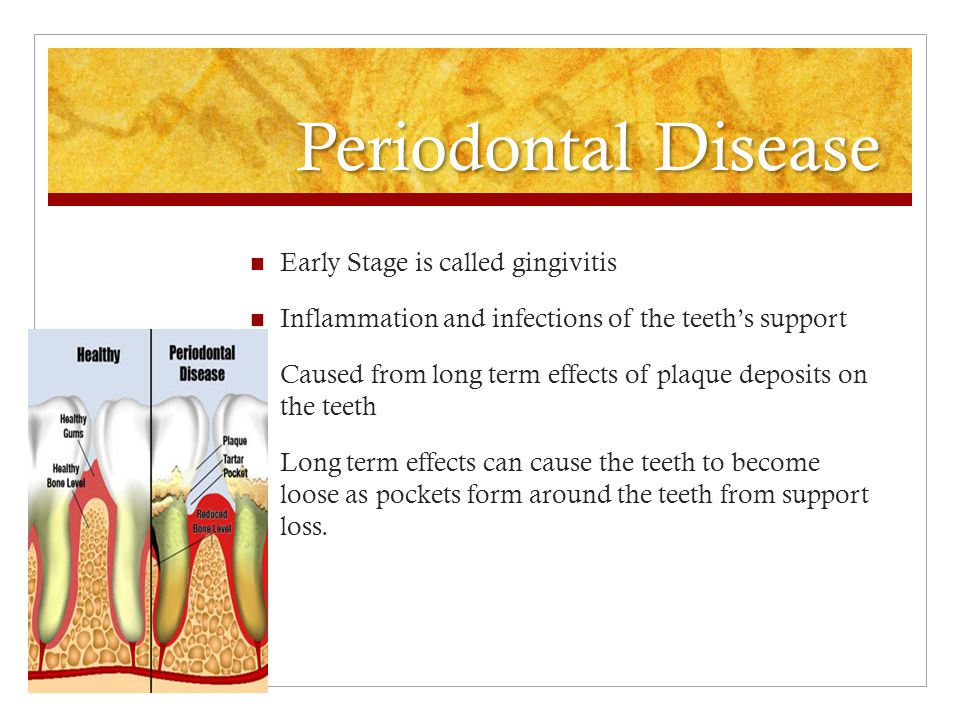 Periodontal Disease Early Stage is called gingivitis