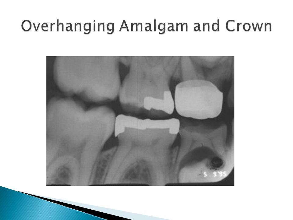 Overhanging Amalgam and Crown