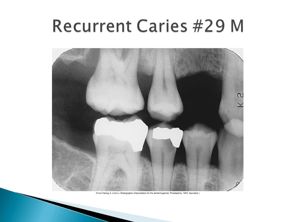 Recurrent Caries #29 M